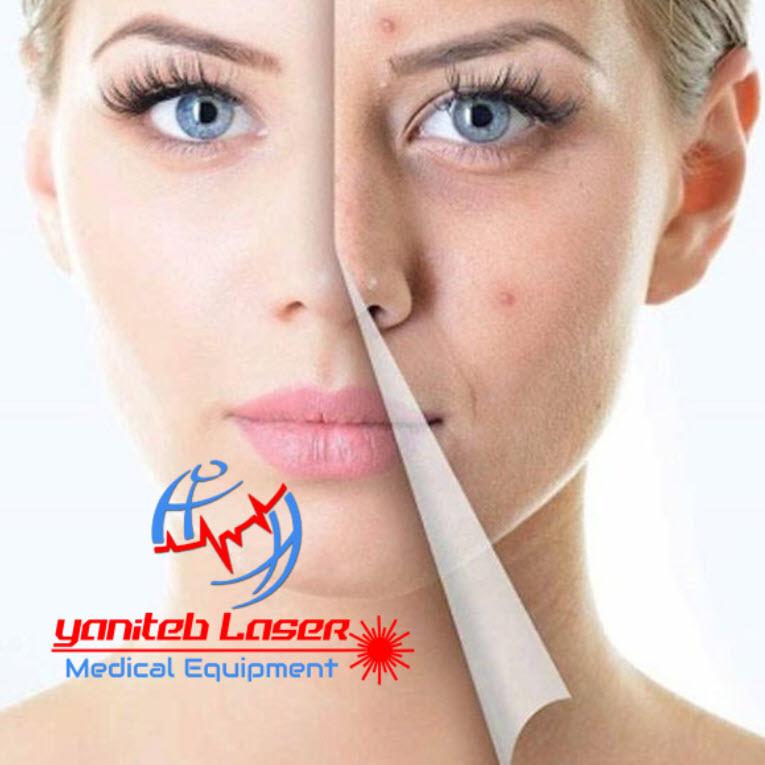 لایه برداری یا پاکسازی پوست - یانی طب لیزر رشت